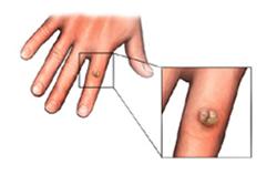 Giardien katze woher, Hpv vírus nedir tedavisi